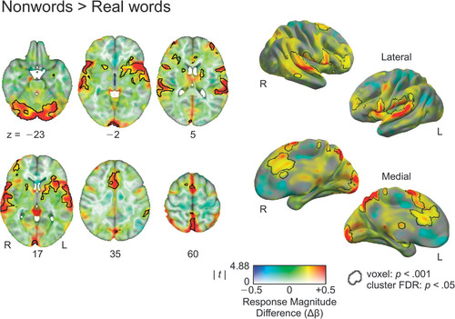 phonological working memory for words and nonwords in cerebral