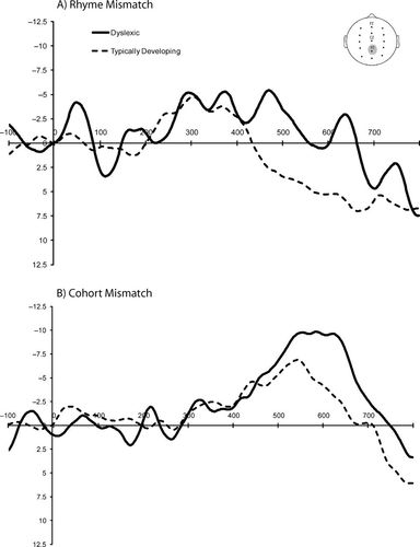Electrophysiological Indices Of Phonological Impairments In Dyslexia
