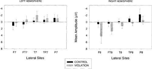 Atypical Syntactic Processing in Individuals Who Stutter