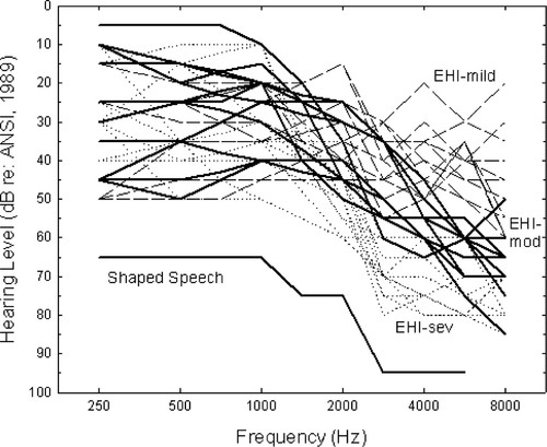 Contribution of High Frequencies to Speech Recognition in