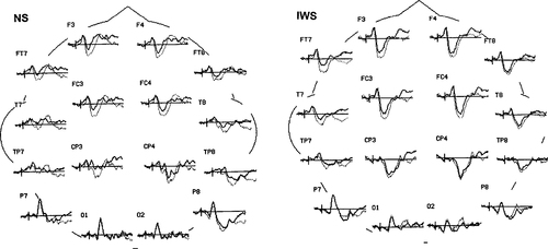 Neural Systems for Sentence Processing in Stuttering