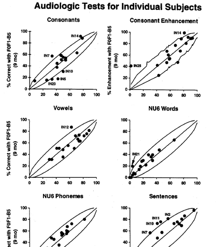 A Within Subject Comparison Of Adult Patients Using The Nucleus